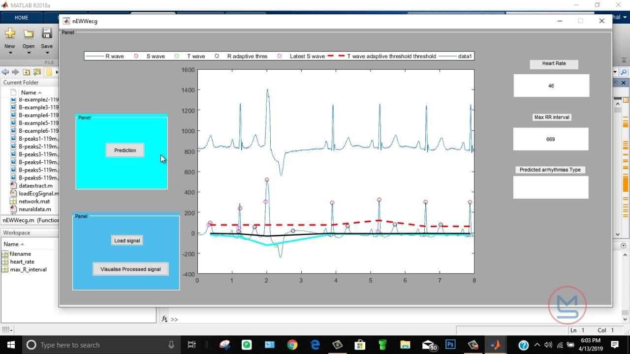Heart Disease Detection( Arrhythmia) using Artificial Neural Network in  MATLAB  | MATLABSolutions