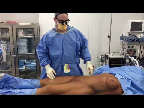 Liposuction and breast revision, inner thigh and inferior buttock lift, BBL  Part 1