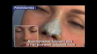 Ринопластика  пластика носа  Rhinoplasty