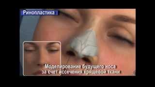 Ринопластика  пластика носа  Rhinoplasty(http://realclinic.ru/plasticheskaya-hiryrgiya/rinoplastika Это хирургическая процедура коррекции носа в целом (изменение размера..., 2013-10-28T10:00:02.000Z)