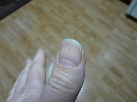 Black Lines Under Finger Nail Horsehair Nematomorpha
