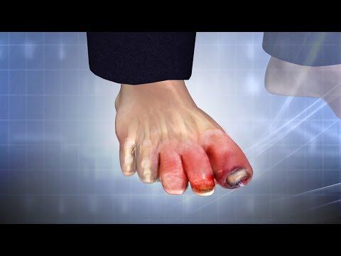 Swollen Toe: Treatment, Causes, Symptoms