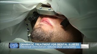 Sanjay Gupta MD: Deep brain stimulation helps OCD patient