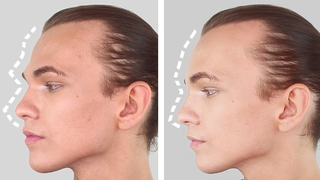 Male To Female Forehead Surgery - Ffsfacial Feminisation -9845