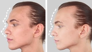Video MALE TO FEMALE FOREHEAD SURGERY - FFS/FACIAL FEMINISATION SURGERY WITH SMART NEEDLES download MP3, 3GP, MP4, WEBM, AVI, FLV September 2018