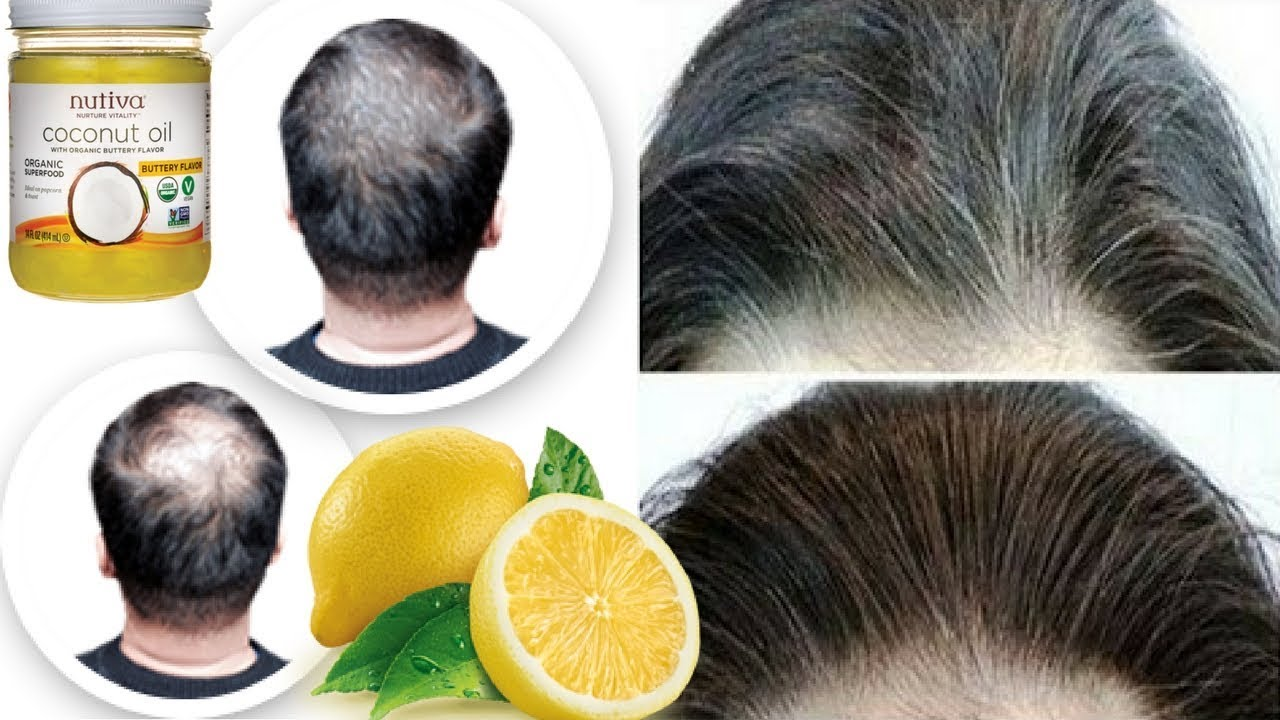 Coconut Oil And Lemon Mixture Turns Gray Hair Back To Its Natural