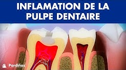 Pulpite – Inflamation de la pulpe dentaire ©
