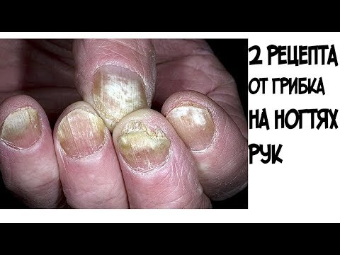 Как вылечить грибок на ногтях рук быстро в домашних условиях