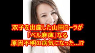 双子を出産した山田ローラが「ベル麻痺」なる原因不明の病気になった...!?  即効性ニュース ベル麻痺 検索動画 22