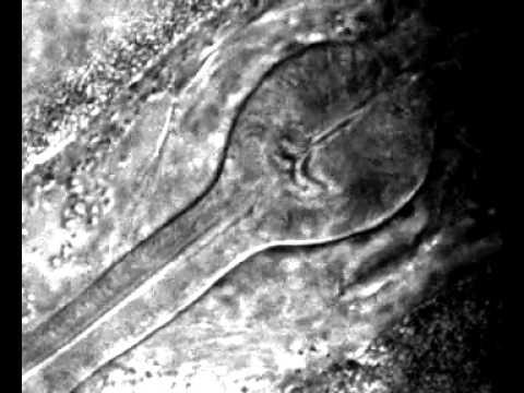 The grinder of nematode C. elegans.