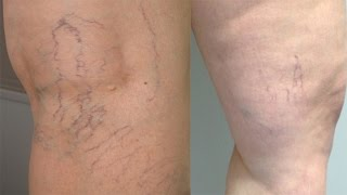 Comment traiter  les varices : jambes ?