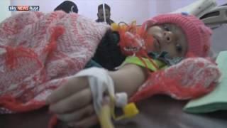 مخاوف من تفشي الكوليرا في اليمن