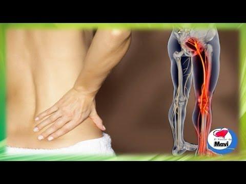 3 hernias intervertebrales lumbar el departamento