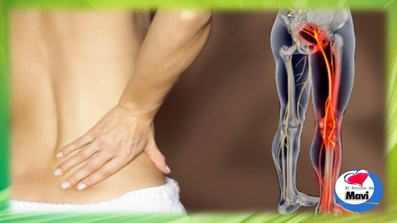 Como tratar la ciatica o dolor del nervio ciatico con tratamientos ...