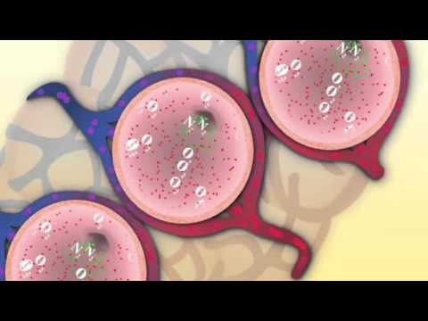 """Common Intubation Scenarios: Bronchiolitis"" by Drs. Mancuso & Wolbrink for OPENPediatrics"