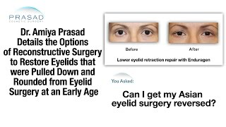 The Challenges of Reversing Almond Shaped Eye Surgery Performed at a Very Young Age