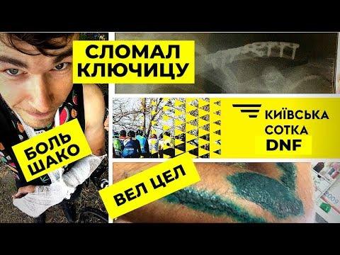 КИЕВСКАЯ СОТКА 2019   СЛОМАЛ КЛЮЧИЦУ   DNF   MASTERS