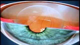 Cristalino - Visare Hospital de Olhos