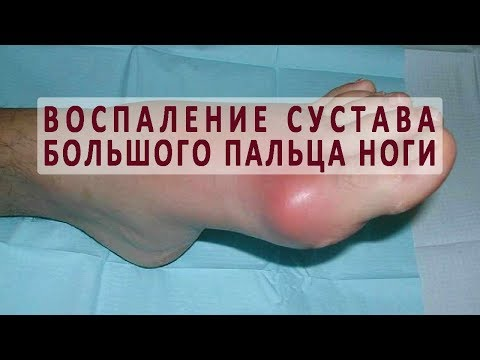 Из за чего бывает воспаление сустава большого пальца ноги?