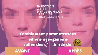 Injection acide hyaluronique - Technique de triangulation