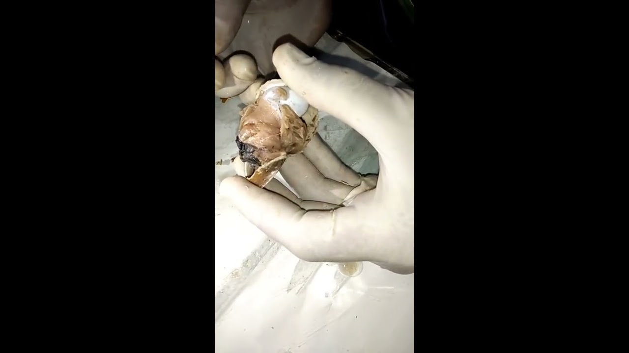 Dissection of nervous system of pila by dr haidar ali khan youtube dissection of nervous system of pila by dr haidar ali khan ccuart Image collections