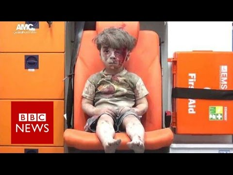 """Omran is a lucky child"" BBC News"