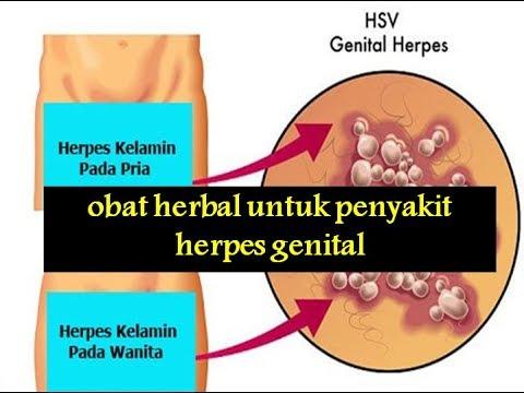 obat-herbal-untuk-penyakit-herpes-genital