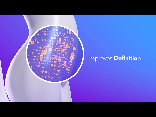 truSculpt 3D: Melt an Average of 24% Fat in one Session
