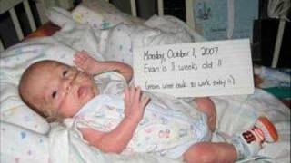 Preemie 25 weeker