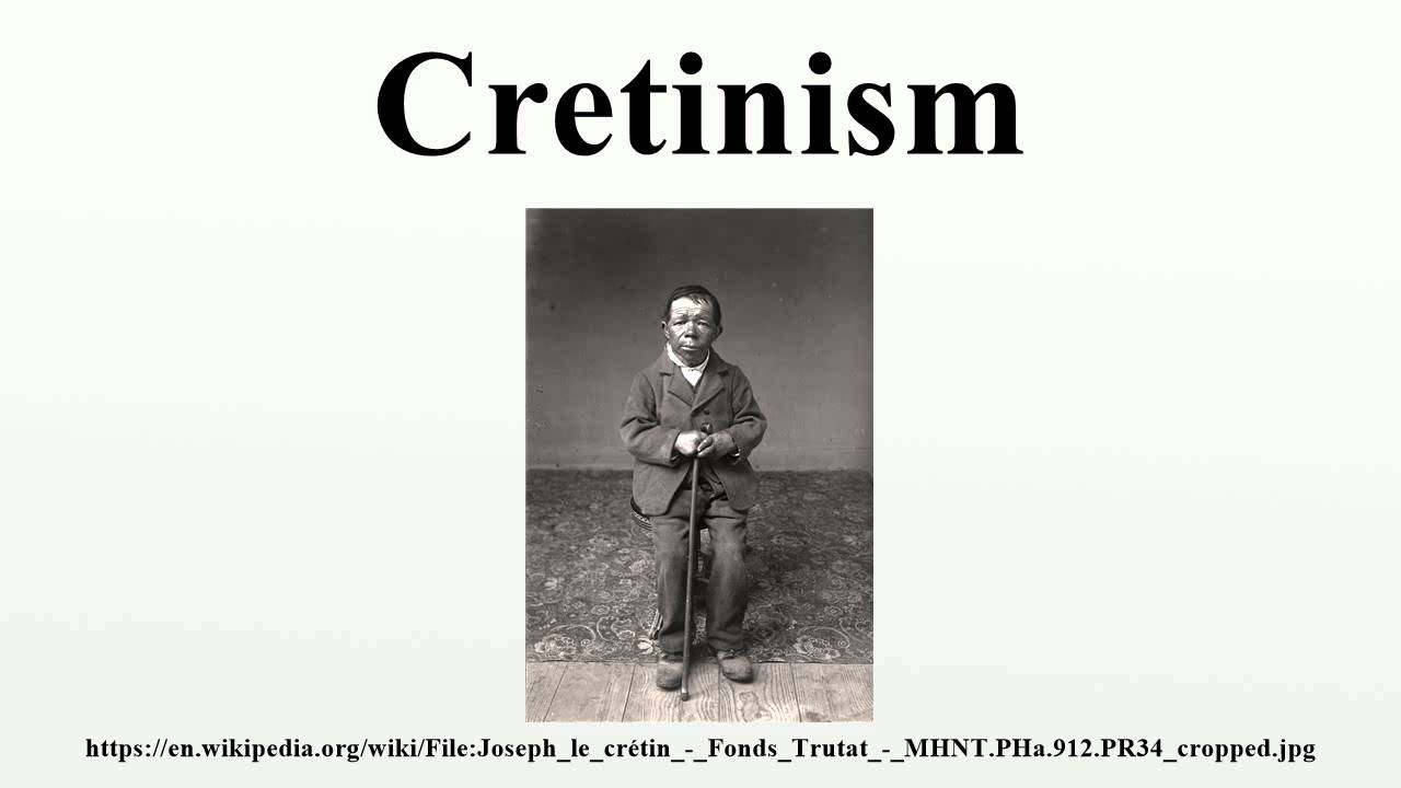 Cretinism - YouTube | 1280 x 720 jpeg 46kB