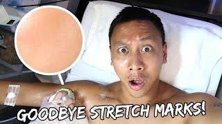 Cara menghilangkan stretch mark agar kulit menjadi mulus kembali - Stretchmark biasanya terjadi saat.