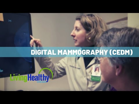 Cancer Testing With Digital Mammography | Living Healthy Chicago