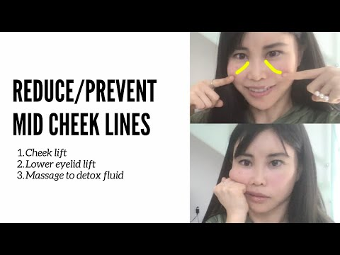Reduce/prevent mid cheek lines (lines on the cheeks) | Lift up exercises and face shiatsu massage