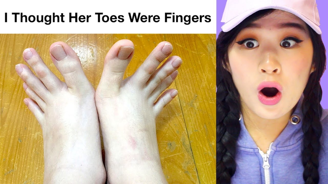 people-sharing-their-unusual-body-parts