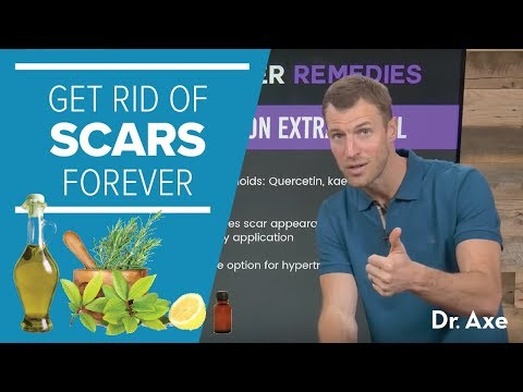 How to Get Rid of Scars Forever