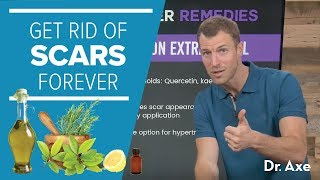 How to Get Rid of Scars Forever | Dr. Josh Axe