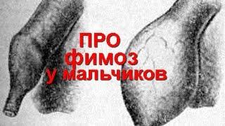 Фимоз у мальчиков - Комаровский