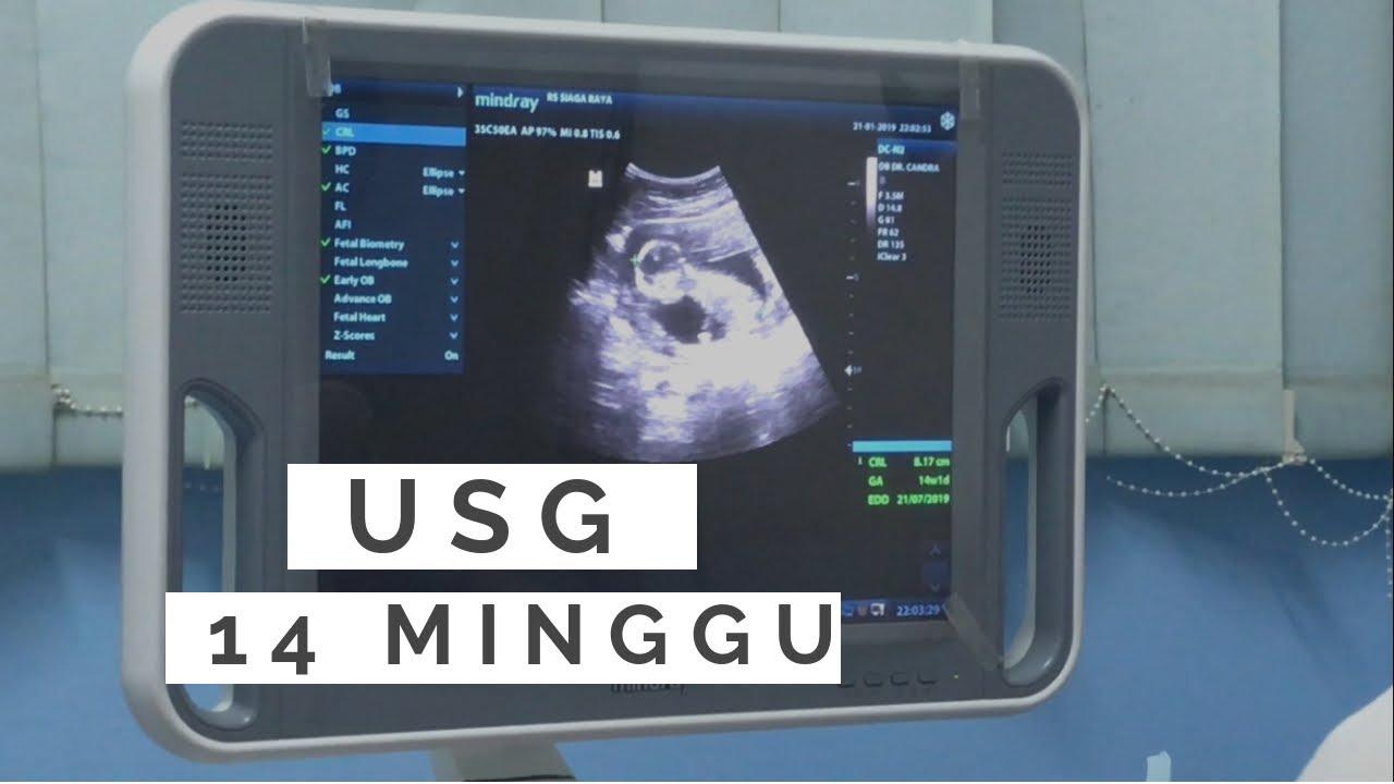 Usg Kehamilan 14 Minggu Cerita Hamil Daniar Pregnancy 14 Weeks Youtube