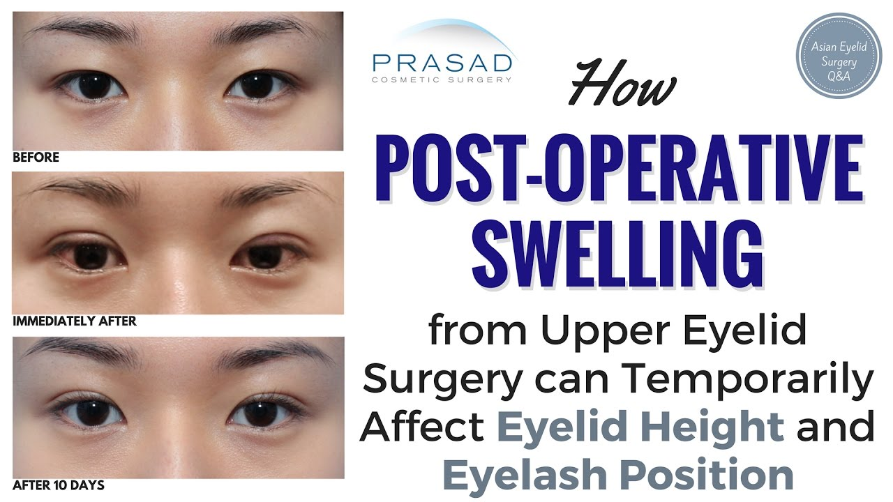 How Healing from Asian Eyelid Surgery Can Cause Temporary Changes in