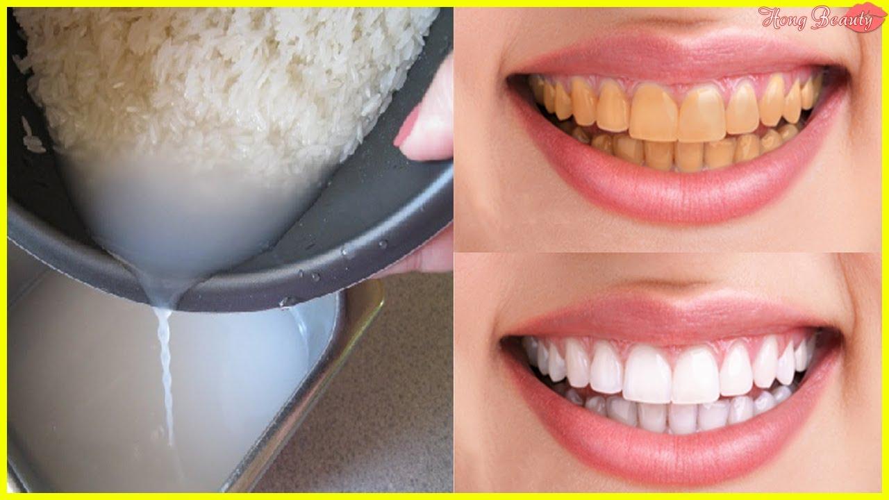 """Cách Làm Trắng Răng """"Nhanh Nhất"""" Tại Nhà Bằng Nước Vo Gạo Cực Đơn Giản"""