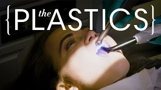 What Do $60,000 Veneers Look Like? | The Plastics | Harper