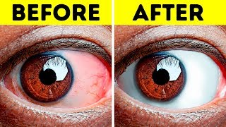 10+ Easy Exercises to Relieve Tired Eyes