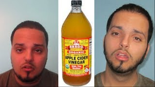 My EXTREME Weight Loss With Apple Cider Vinegar (230 To 155lbs)
