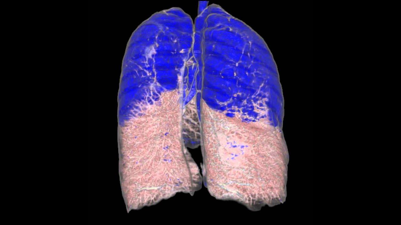 iRad-KA CT Lunge COPD - Emphysem - Ihre Radiologie in Karlsruhe ...