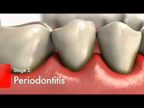 Orthosmile - Understanding Gum Disease