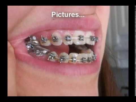 traitement appareil dentaire les d ffirentes tapes a