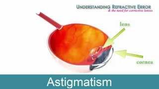 what is an astigmatism | astigmatism