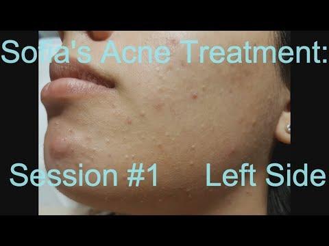 Sofia's Acne Treatment:  Session #1 -  Left side
