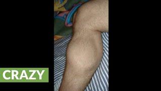 Post-gym footage shows insane calf cramp