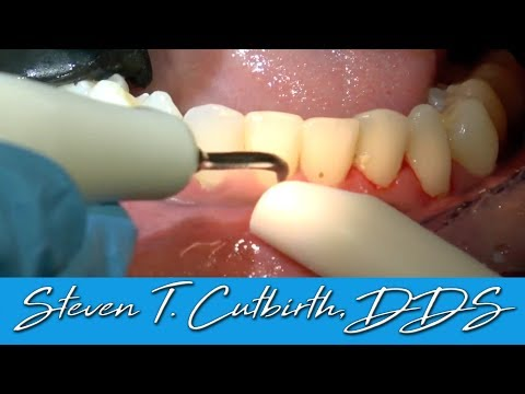 scaling-&-root-planing---dental-minute-with-steven-t.-cutbirth,-dds